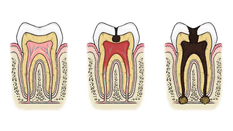 Hampaan Juuret